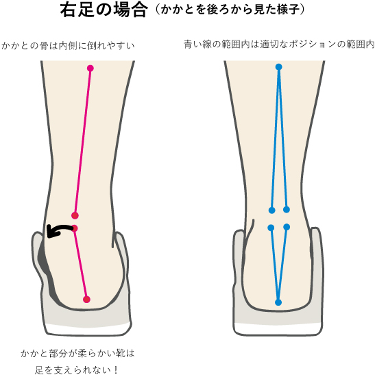 靴による足のアライメントのイメージ
